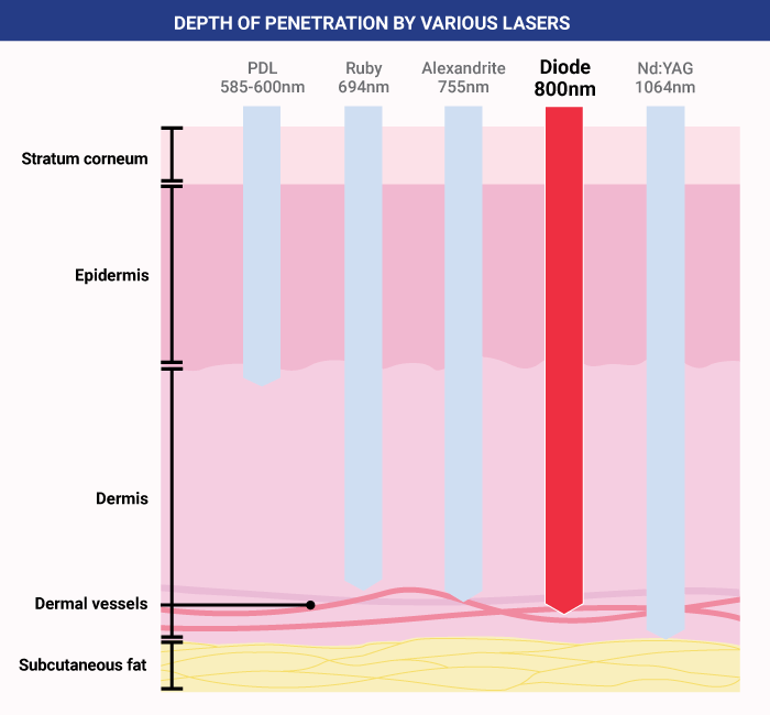 medical laser diagram depth of penetration